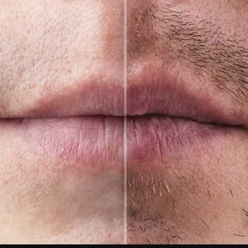 Beard and Mustache Transplantation 13 – 01863efd 7583 462a 99c1 e75f26914439