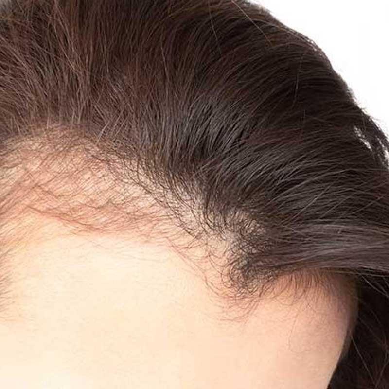 Trasplante de cabello femenino 19 – 05ff5a1f 0049 4387 bd36 b0d826f85e9e