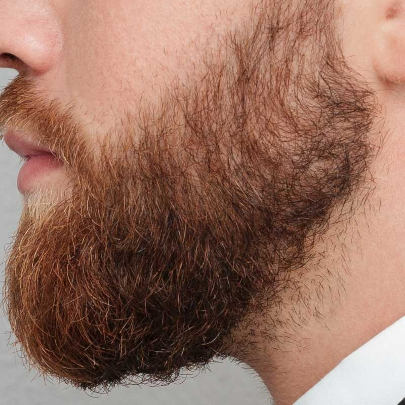 Beard and Mustache Transplantation 16 – 32abb959 3c4c 4da2 9574 b8a849e92e7b