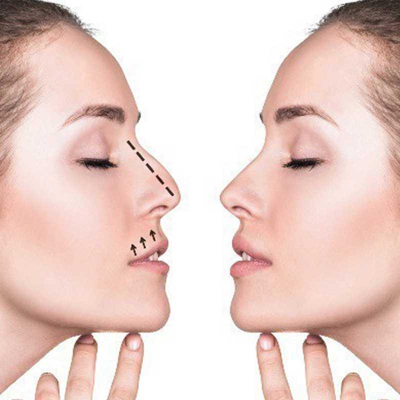 Rinoplastia (tratamento do nariz) 13 – 36b40fec 44ff 49b3 8f3d 7434ca0fe6d7