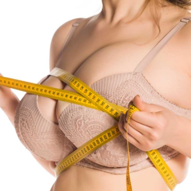 Breast Reduction 14 – 3b2fac98 fd86 44a0 bbb1 664e9d1f8be1