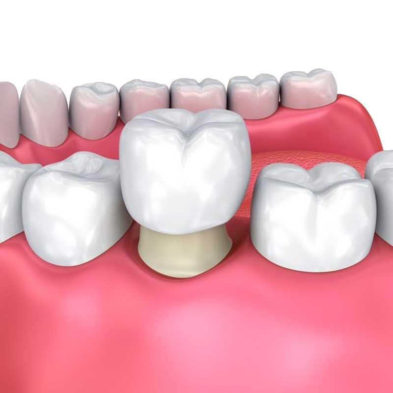 Couronnes dentaires 14 – 3fcd296a 33d0 4685 b63b 5b634490bcea