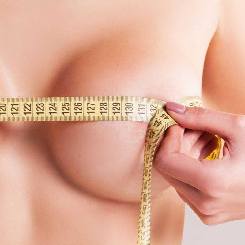 Breast Reduction 13 – 49e187c4 1b14 4d3e af5b 472a6a9347a6