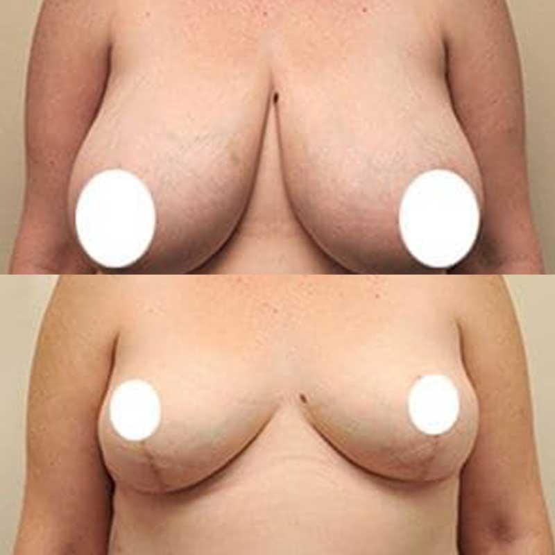 Breast Reduction 15 – 684f1470 c932 4401 86a2 85aa0c1c3377