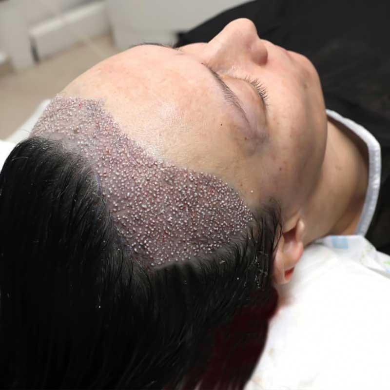 Trasplante de cabello femenino 21 – 7e6e24aa 6470 4ed1 abab 7033a2ac7d7b