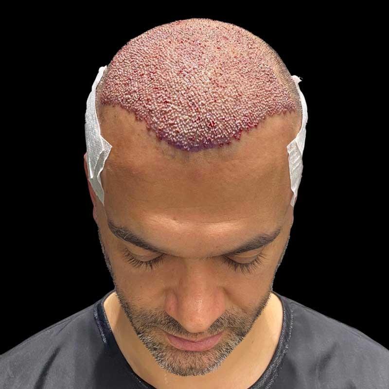 زراعة الشعر 12 – Hair transplant