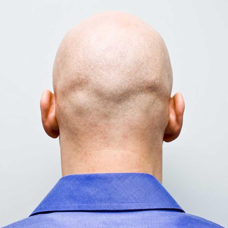 Trattamento per capelli Safir 13 – Sapphire Hair Technique2