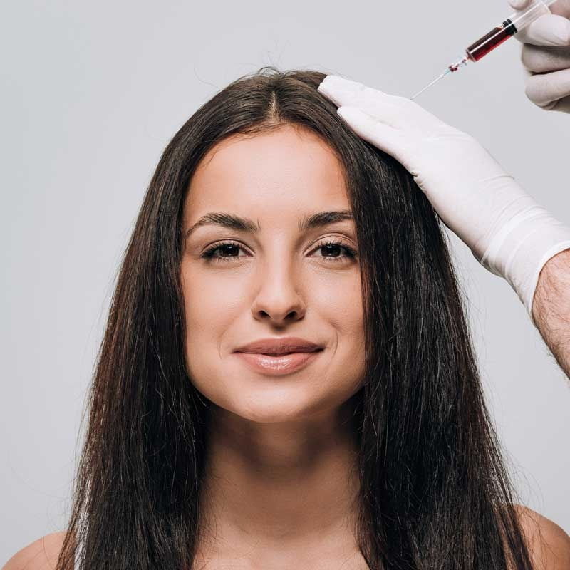 Mesoterapia dei capelli 12 – b0ce7835 5333 4b82 af16 2909cbf8b6eb