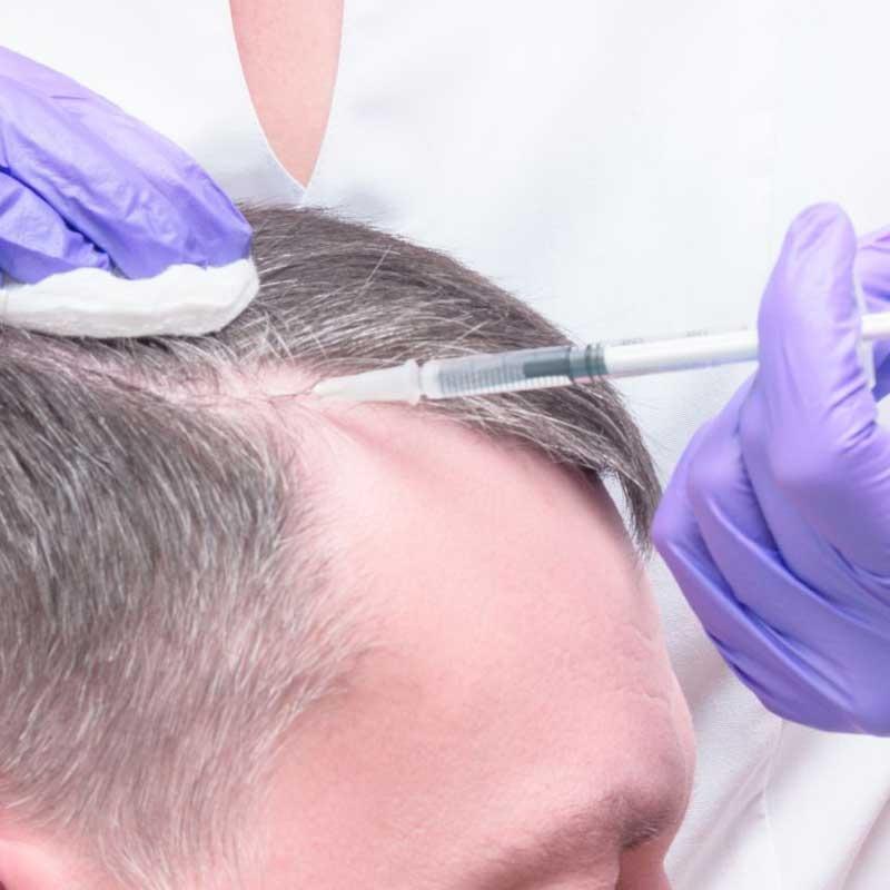 Técnica de cabello PRP 13 – c1a4c49b 3a69 46d7 928d 0409514e2a4e