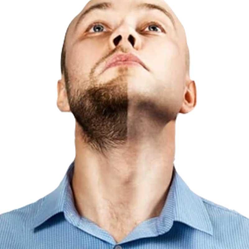 Beard and Mustache Transplantation 15 – ca6e4876 2c4d 4eab b4f4 afe7e97a6f4b