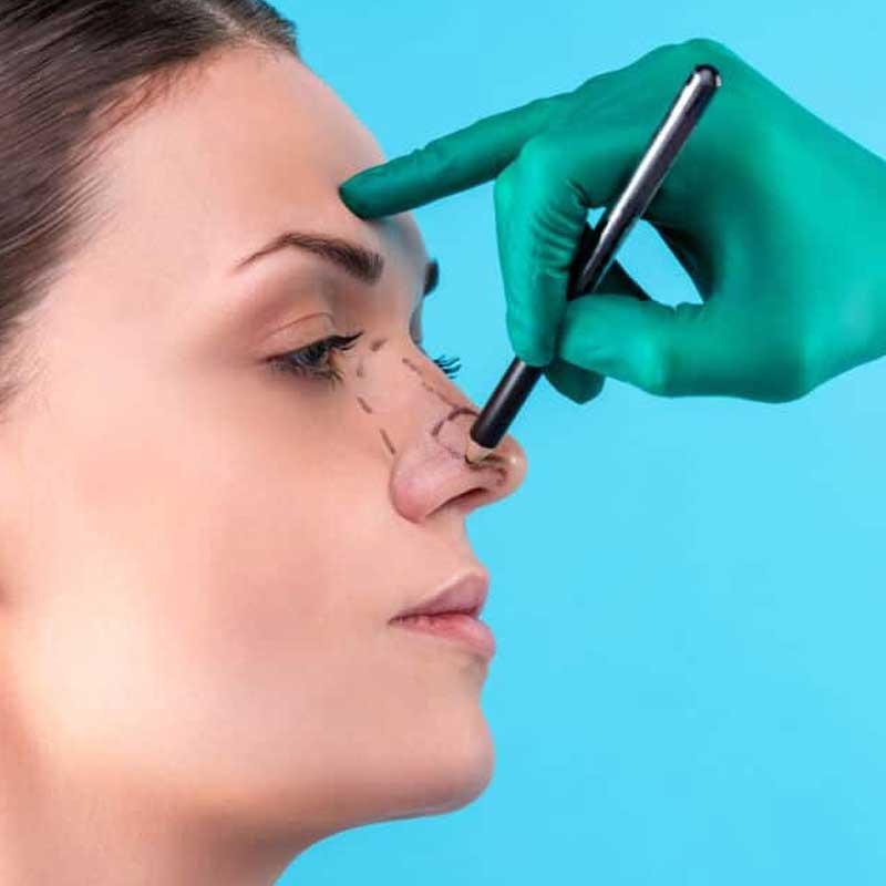 Rinoplastia (tratamento do nariz) 14 – cc31e96a d5e8 4abb bea4 fc34d82005e8