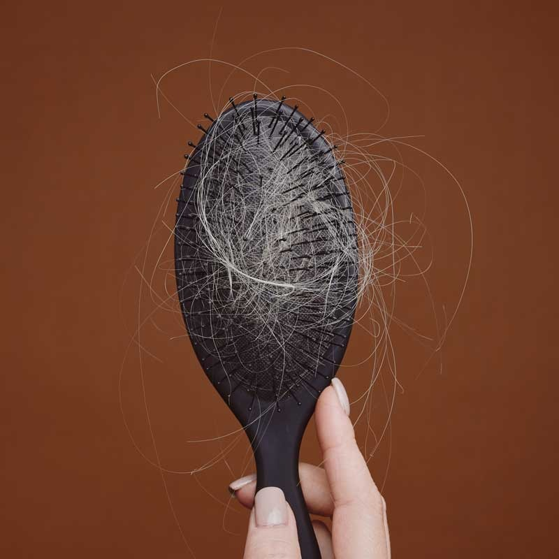 Trasplante de cabello femenino 14 – d5a2fd2c 3966 4bc7 ba6b 50ec1343a39b