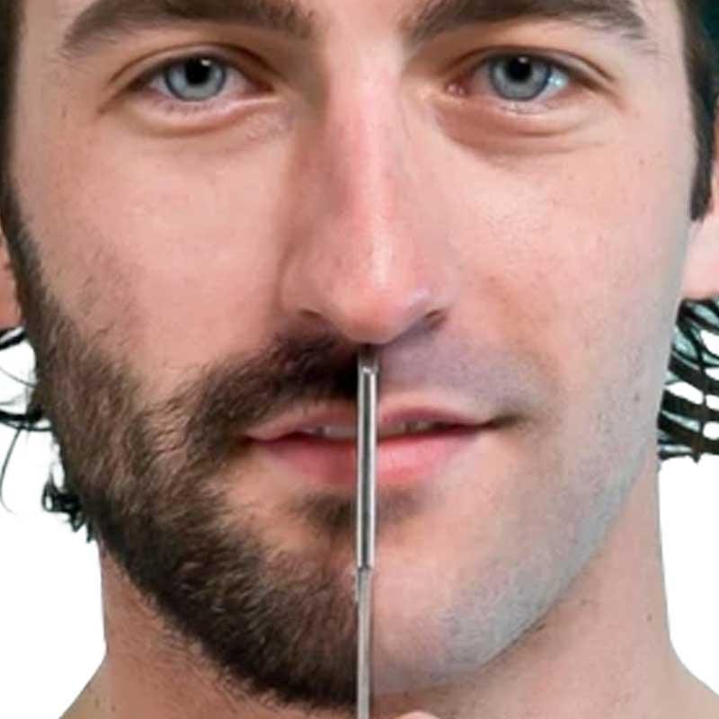 Beard and Mustache Transplantation 14 – dc1f18bf 6392 4678 8db6 ab5752182cd2
