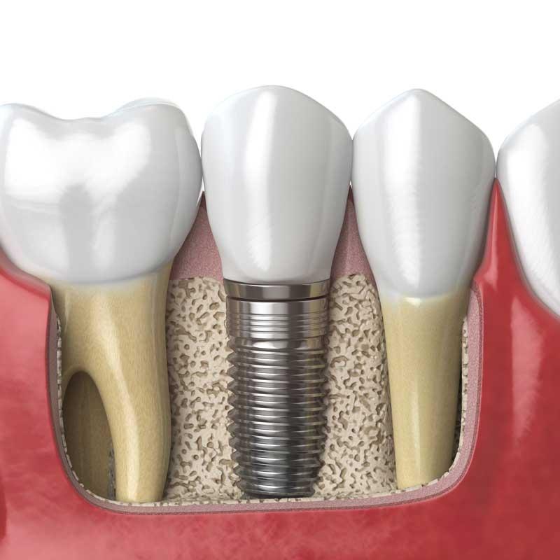 Implantes dentários 12 – dental implant 1