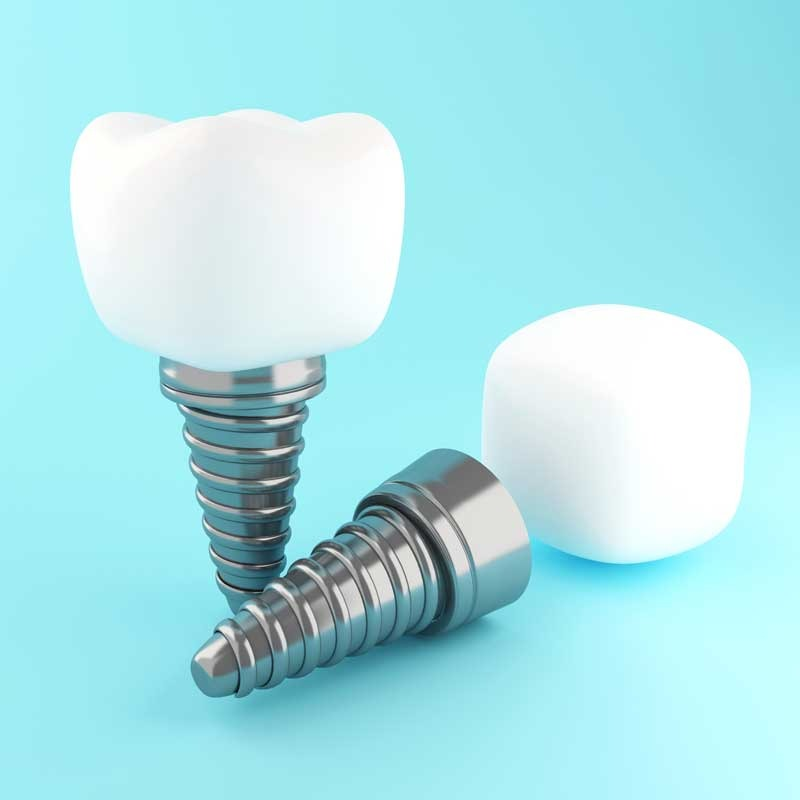 Implantes dentários 13 – dental implant