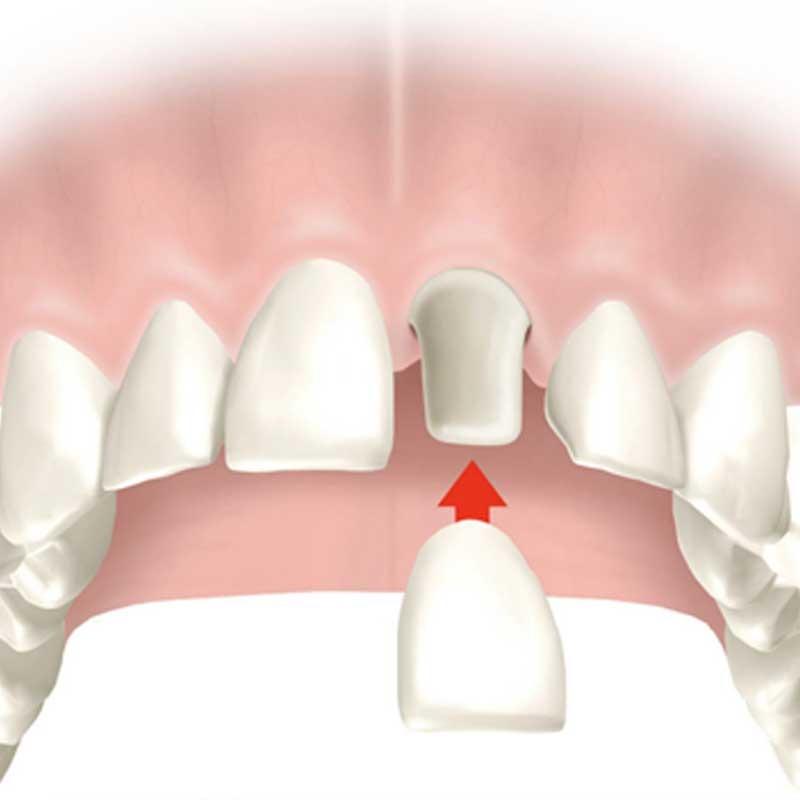 Couronnes dentaires 13 – ea3b9da3 7059 4a73 afdb 16a1cf07facc