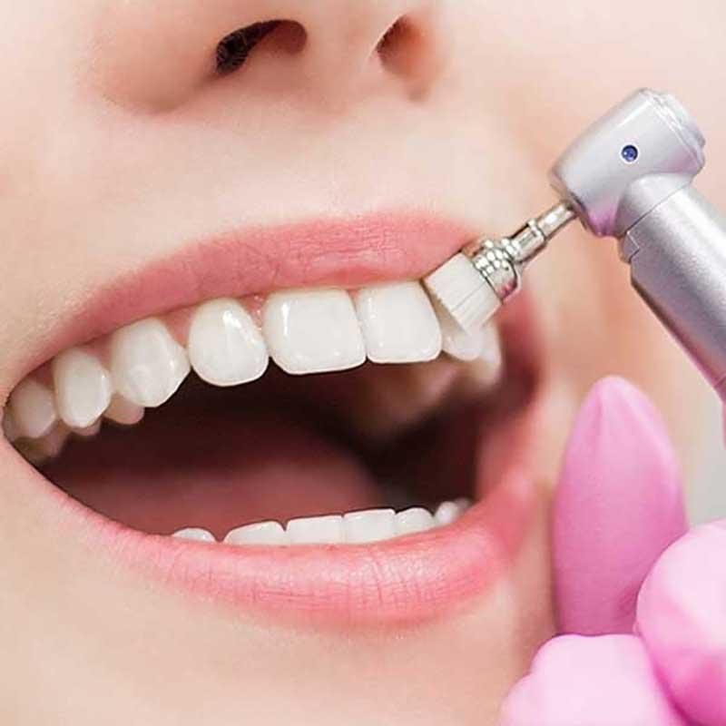 Couronnes dentaires 18 – leicesterhealth dental