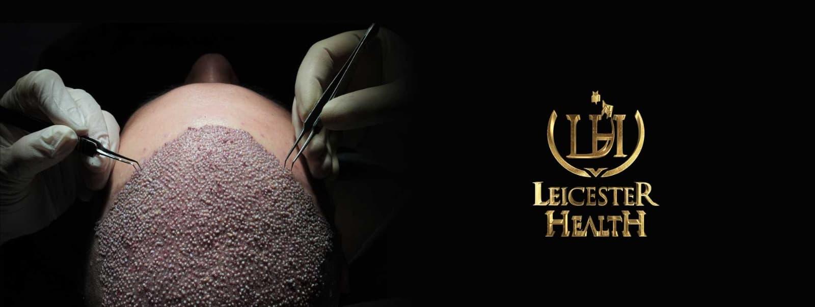 Leicester Health 1 – lh banner hair istanbul tr 1